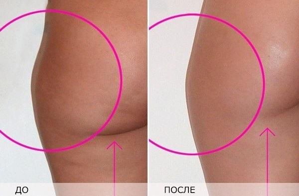 До и после антицеллюлитных процедур